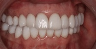 actual patient #5 bright smile after teeth whitening