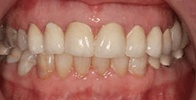 actual patient #5 yellow discolored smile before teeth whitening