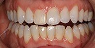 actual patient #8 perfectly aligned teeth with Invisalign