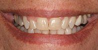 actual patient #9 properly aligned bottom teeth after Invisalign