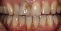 actual patient #13 severe decay on front tooth before veneers