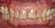 actual patient #14 severely decayed and discolored teeth before dental treatment