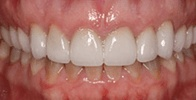 actual patient #2 healthy teeth after gumlift and veneers