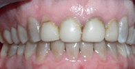 actual patient #2 decayed teeth before gumlift and veneers