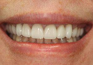 actual patient #2 Closeup of whitened smile after dental treatment