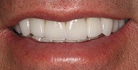 actual patient #6 healthy and bright smile after veneers and crowns