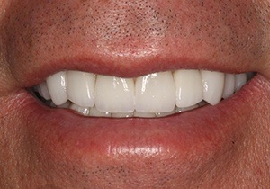 actual patient #6 restored smile through veneers and crowns
