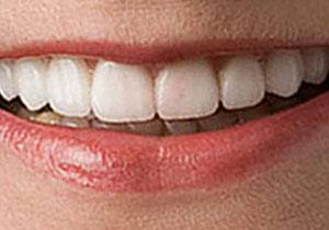 actual patient #3 Closeup of whitened teeth after treatment