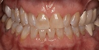 actual patient #4 discolored teeth before dental treatment