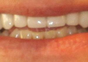 actual patient #4 bright white smile closeup