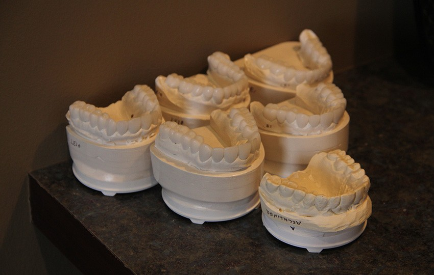 Dental wax-up molds displayed in exam room