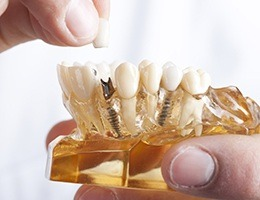Model smile with implant supported dental crown