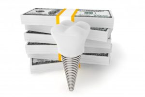 dental implant with money